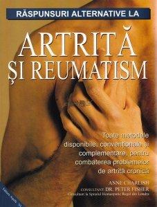 Raspunsuri alternative la artrita si reumatism