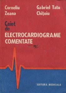 Caiet de electrocardiograme comentate